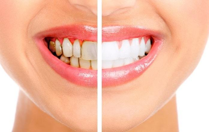 How Beneficial Are Teeth Whitening Products